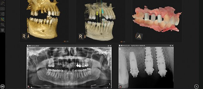 EP 014 | The Digital Dentist Magazine by Carestream